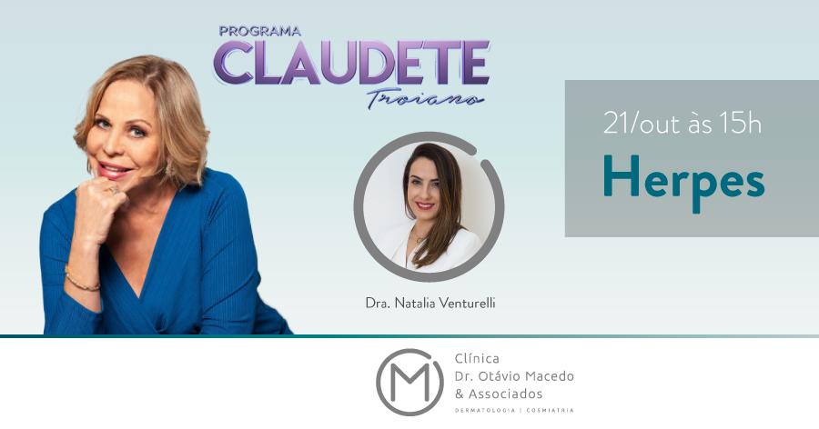 Programa Claudete Troiano Herpes - Clínica Dr. Otávio Macedo & Associados